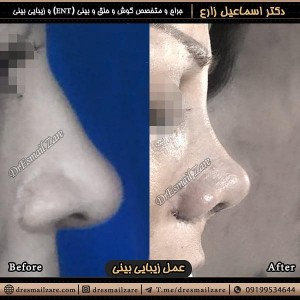 جراحی بینی باز
