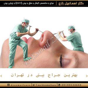 بهترین جراحی بینی در تهران