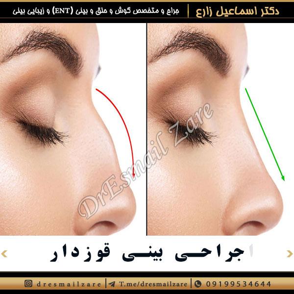 جراحی بینی قوزدار