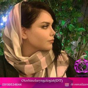 عمل بینی تهران 20