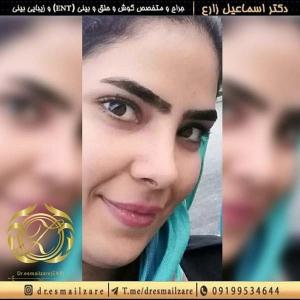 عمل بینی تهران 8